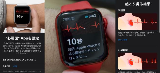 ついに日本でも使えるようになったApple Watchの心電図機能の使い方