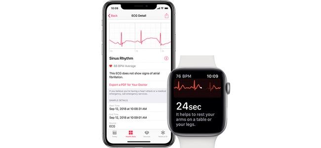 watchOS 5.1.2でApple Watch Series 4の心電図測定機能が有効になる模様